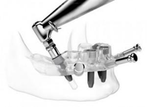 Implantes micro cirugía